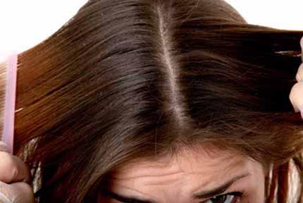best shampoo for dry scalp
