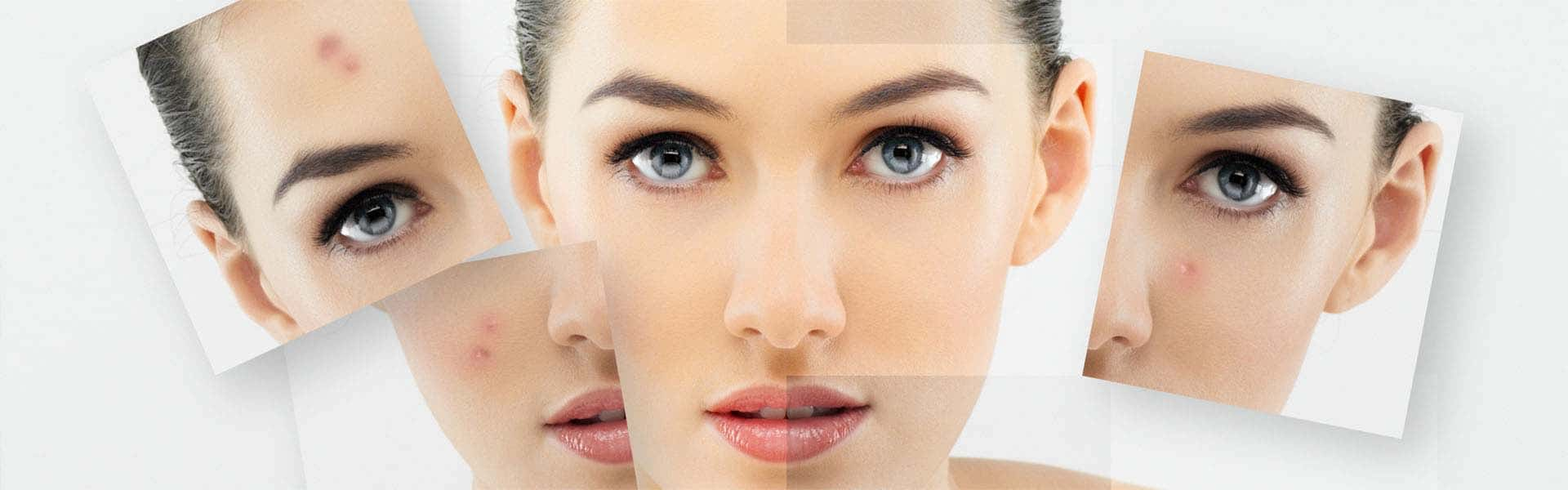 Best Acne Scar Treatment 2019 – Buyer's Guide and Reviews